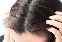 女性头顶分界线明显头发少什么原因 分界线明显稀少如何改善